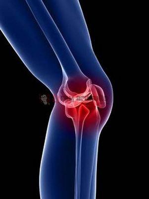 Pengobatan Osteoporosis Meskipun pengobatan osteoporosis tidak menyembuhkan